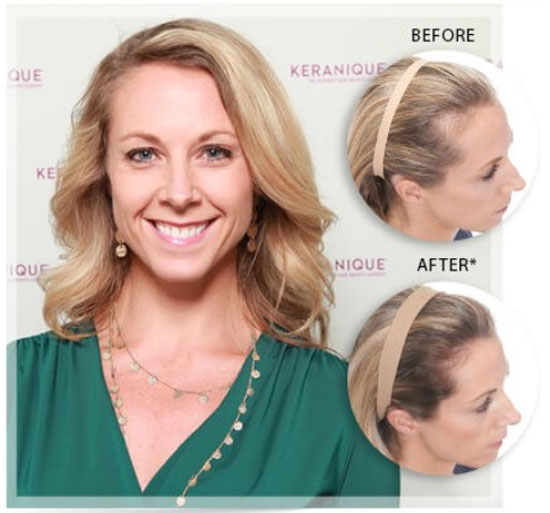 keranique hair regrowth treatment before and after
